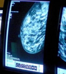 Cancer: Thousands surviving in UK decades after diagnosis